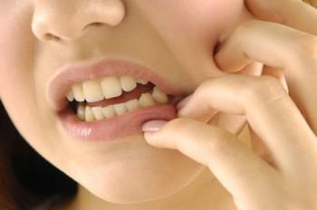 Cara Mengatasi Gigi Ngilu 350x232 Cara Mengatasi Gigi Ngilu / Sensitif